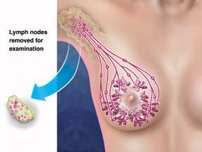 Swollen Lymph Nodes Under Armpit